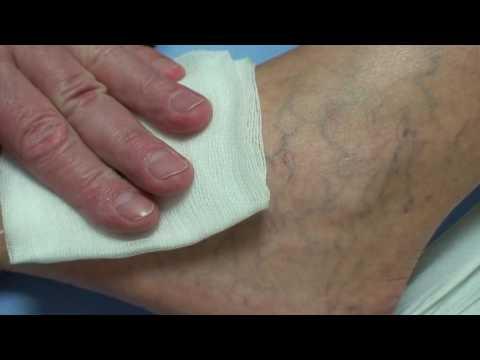 kramatorsk visszerek kezelése