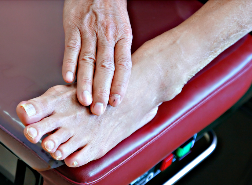 aki a lábak varikózisát kezeli