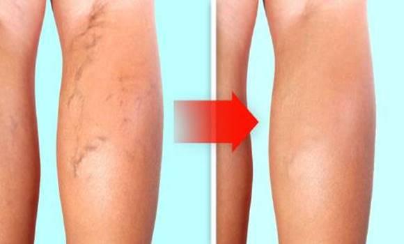 visszér a lábakon a kezdeti szakasz kezelése