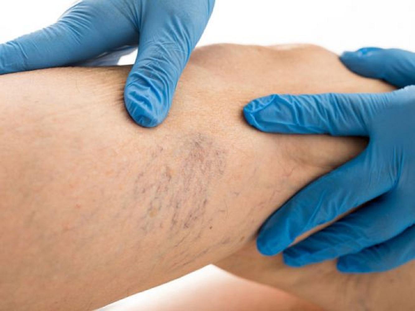 hogyan lehet megszabadulni a visszér recept hogyan lehet otthon gyógyítani a visszerek a lábakon