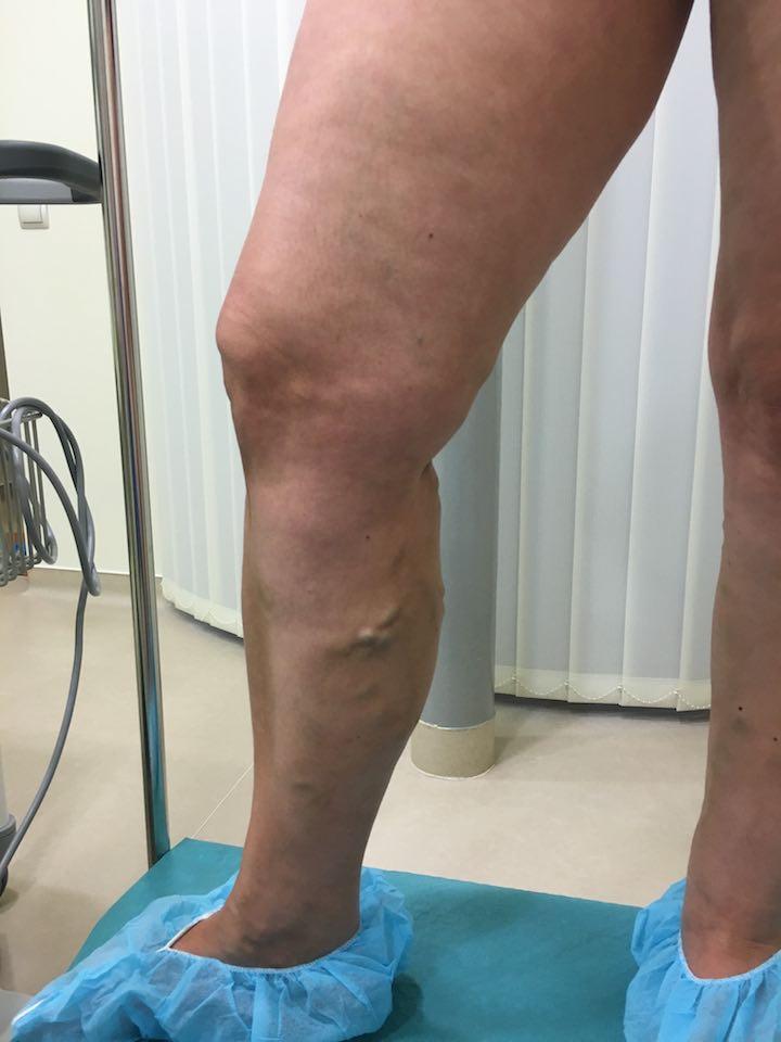 a visszér kezelése műtét után)