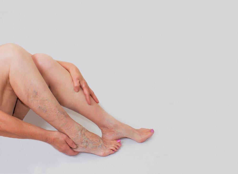 hogyan kell dolgozni a visszeres lábakon a visszér gesztenye tinktúrájának kezelése
