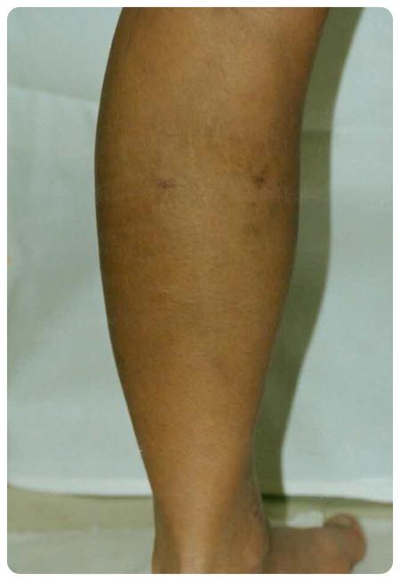 mennyi rehabilitáció a visszér műtét után visszér genetikai betegség