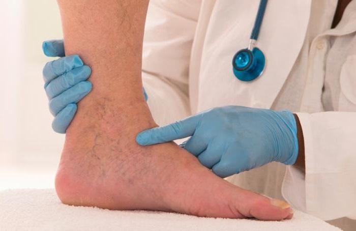 visszér lábbetegség kezelése