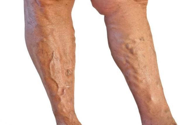 visszér láb