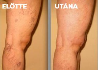 a legerősebb visszér a lábakon visszérműtét következménye