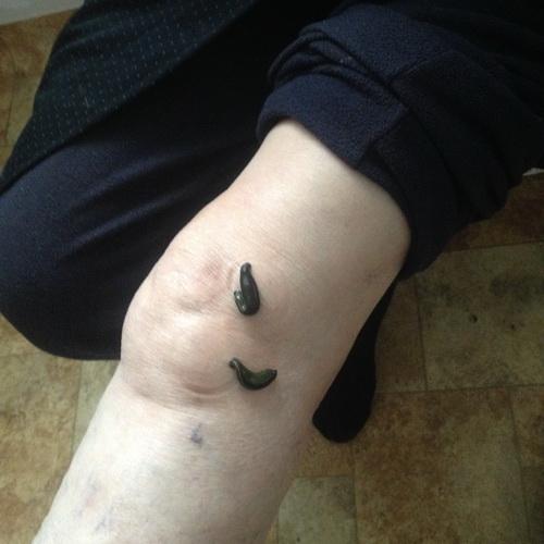 piócák visszér a lábakon ár fájhat-e a kismedence visszérje