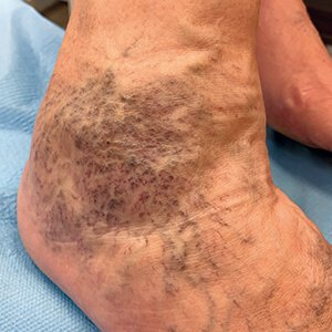 a visszeres lábakon lévő foltok barna színűek
