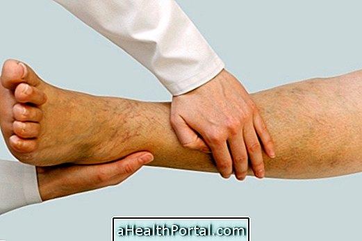 fáradtsággal a lábakban és a varikózisban