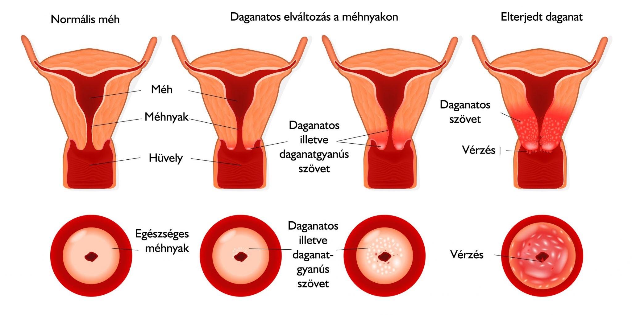 Hogyan válasszunk hormonális fogamzásgátlót?