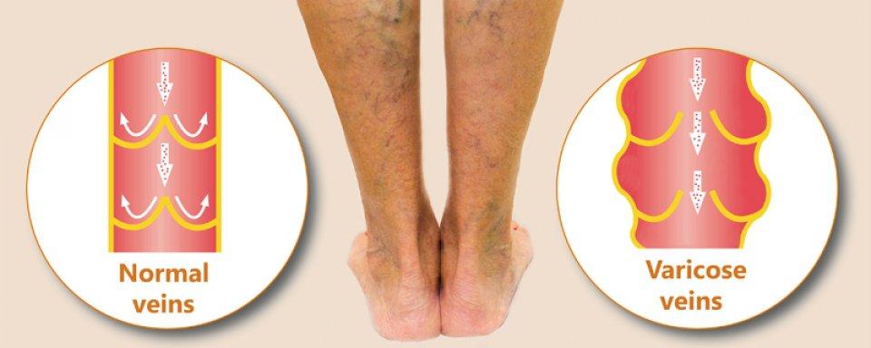 a lábak kezdeti szakaszának visszeres fényképe
