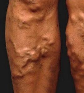 visszér, melyik orvos megy a lábak a térd alatt viszketnek a visszerektől
