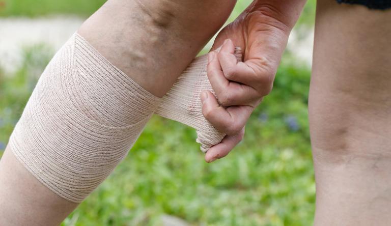 visszér nem tud járni a fájdalomtól visszerek minimálisan invazív módszerek