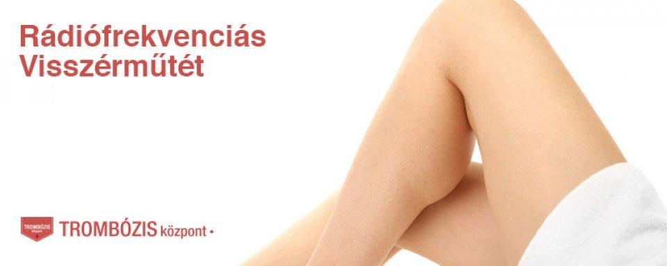 visszér a lábakon a betegség jelei kramatorsk visszerek kezelése