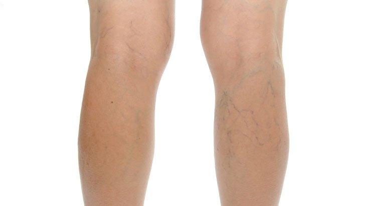 Fáj a lába? Ez visszértágulat és érszűkület is lehet