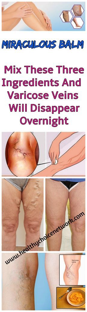 mi a perineális visszér