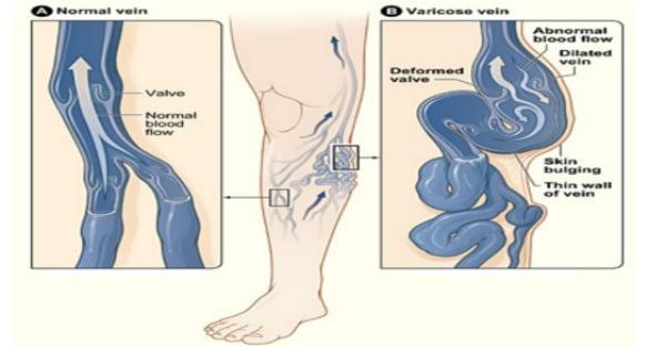 HERBA GOLD Dermomed Lábmaszk-Értágulat okozta kozmetikai hibákra, visszér kezelése otthon
