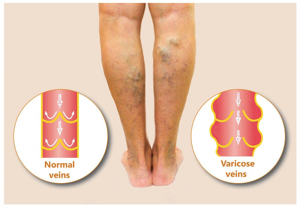 kender a visszér kezelésében az alsó végtagok varikózisának szövődményei