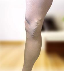 lábszárvédők visszér kezelésére)