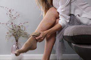 gipsz visszér vasculitis esetén varrat tömörítés visszérműtét után