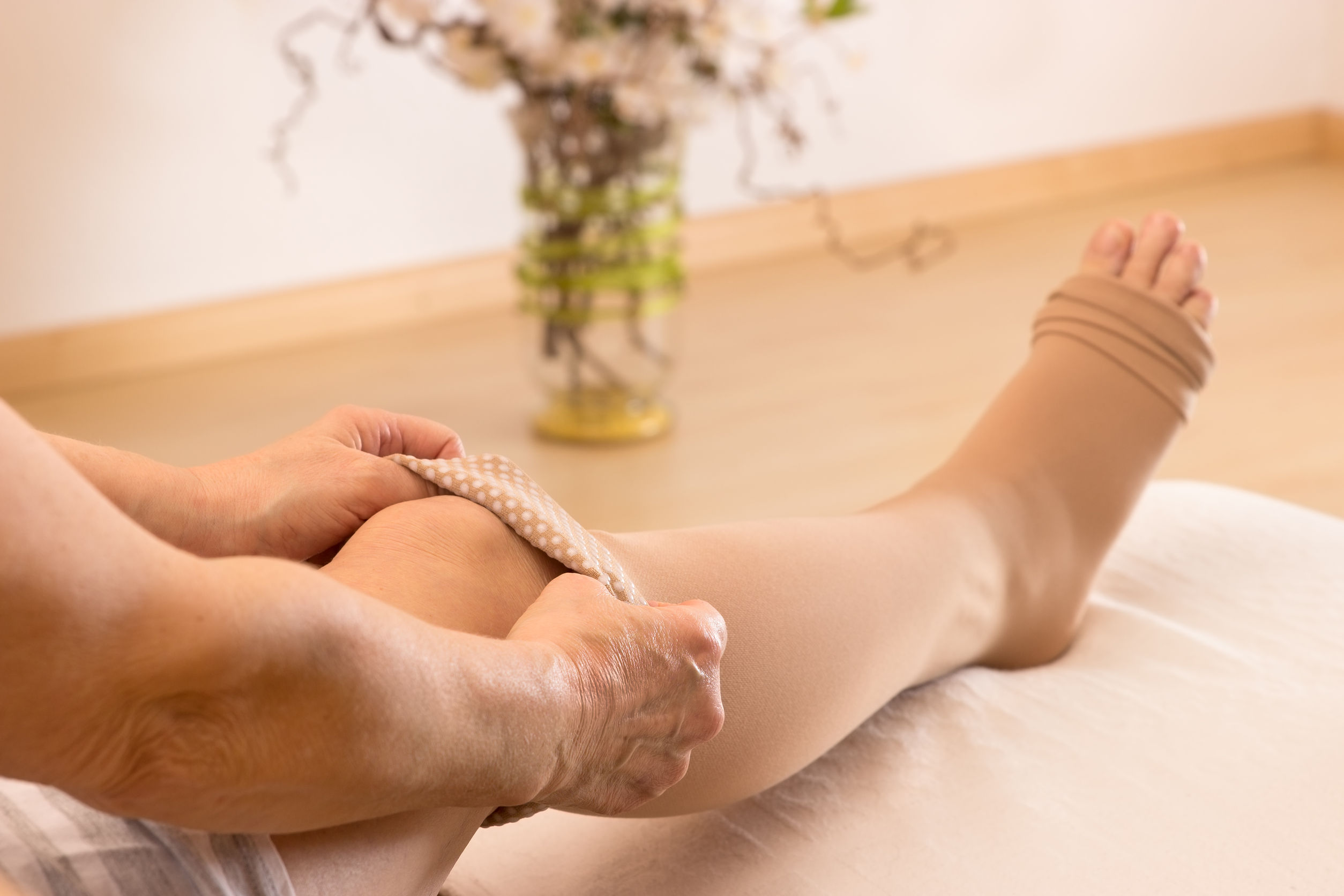 gyógymódok a fejlett visszér kezelésére louise széna visszér