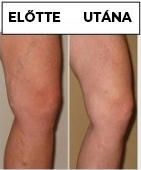 a viselt lábakon lévő visszerektől a kontraszt zuhany hasznos a visszér ellen