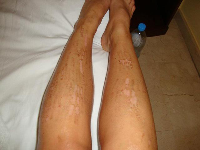 hogyan lehet borotválni a lábát visszérrel