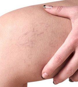 vénák a lábakon visszerek kezelése