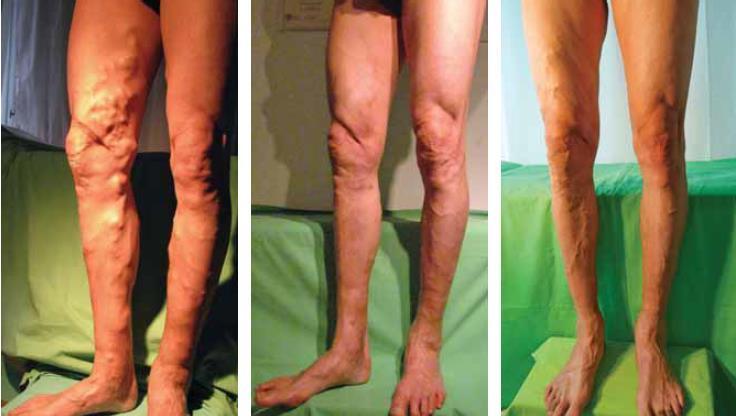 thrombophlebitis és visszérműtét)