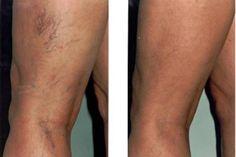 A lábszárfekély veszélyei | BENU Gyógyszertárak