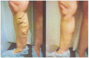 mennyit kell viselni a kötést visszeres műtét után)