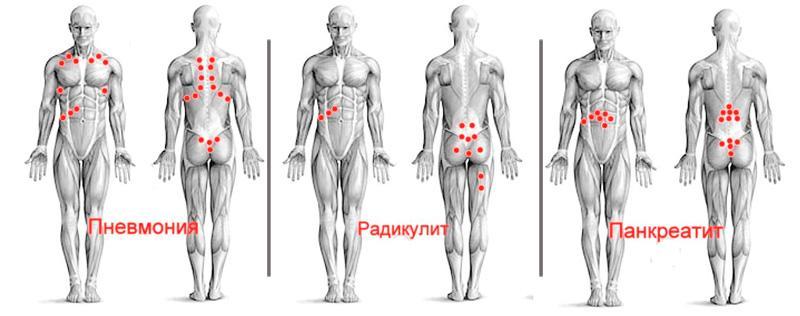 Hirudoterápia krónikus prosztatagyulladás kezelésére