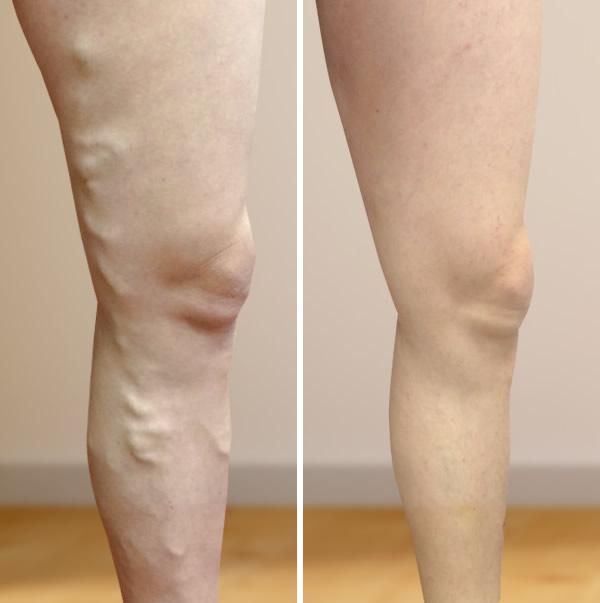 visszér fotók a kezelés előtt és után
