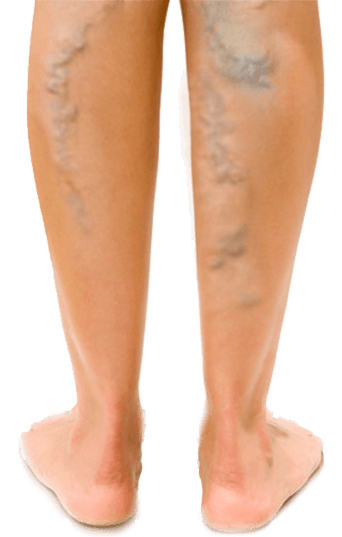 Vénás varikózis a láb kezelésére