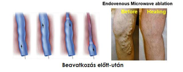korlátozás visszér műtét után)