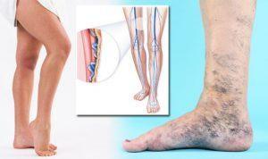 Visszérbetegség – a mozgás a legjobb gyógymód