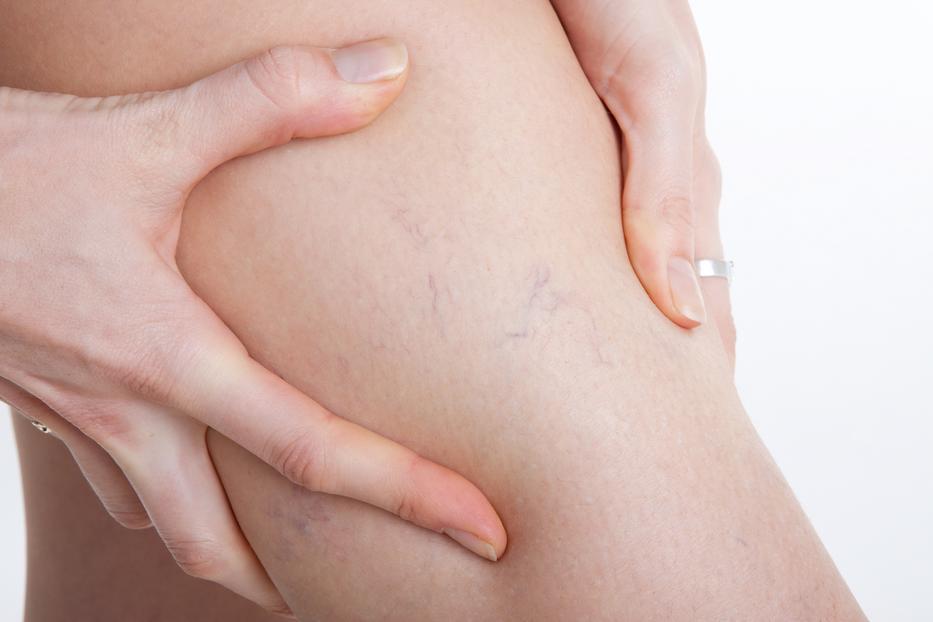 a lábak fájnak a visszerek csökkenti a lábizmok varikózisát