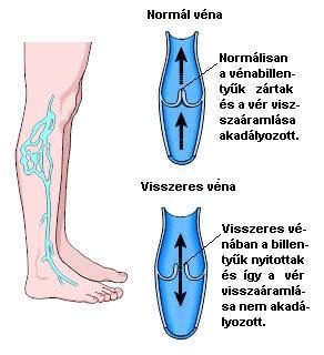 vélemények a vénák visszérről a lábakon)