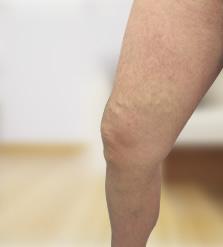 Novinet visszér - Fájó lábak visszér kezelése