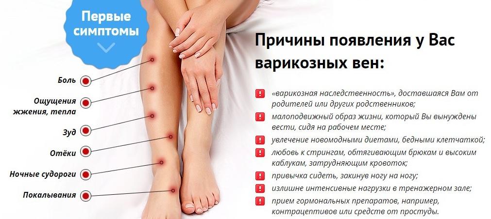 amikor a varikózis miatt műtétre van szükség)