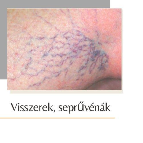 visszér kezelése lézerrel Lvivben)