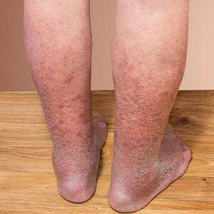 visszér a lábakon a betegség jelei