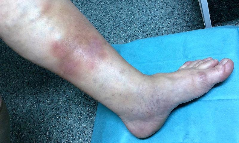 visszér, a lábon lévő seb nem gyógyul meg