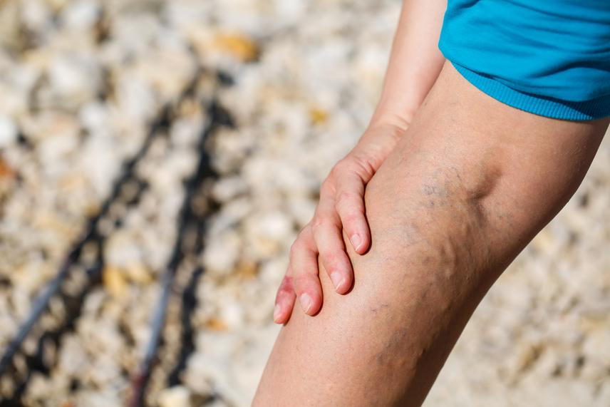 mi segít a visszeres fájdalom esetén
