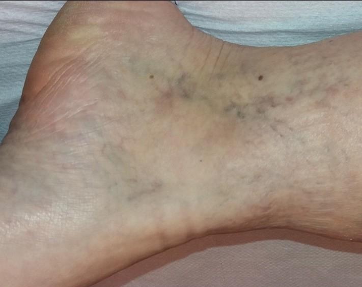 kezdeti visszér a lábakon fotó