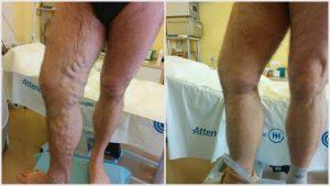 hogyan lehet gyógyítani a hematoma visszér műtét után