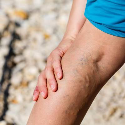Visszerek a lábon: mikor forduljunk orvoshoz? - EgészségKalauz
