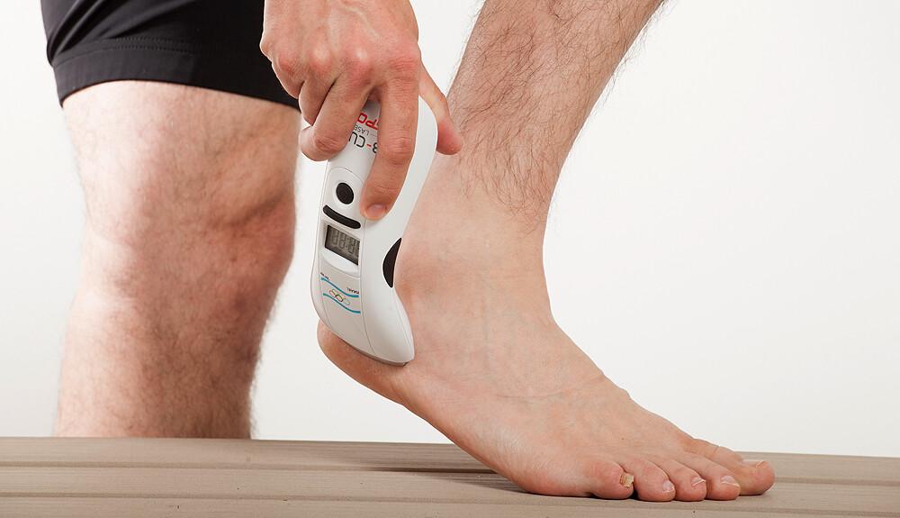 Varicose veins puffadás a láb