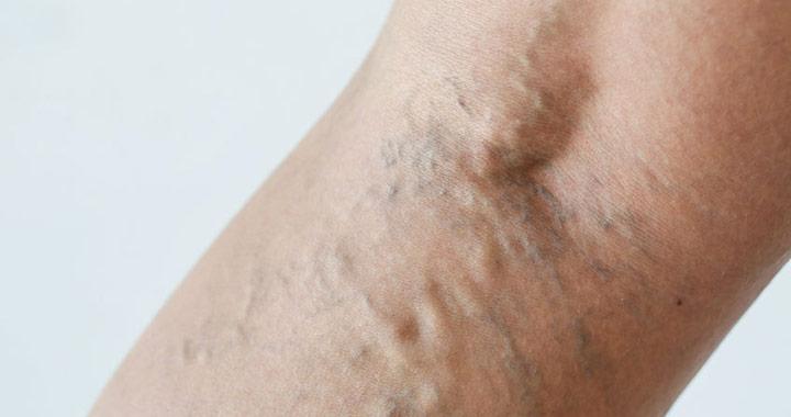 viszkető láb visszér gyógyított visszerek otthon