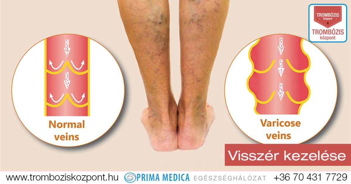 visszér a lábakon fotótünetek kezelése
